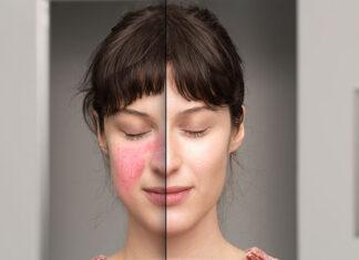 Trądzik różowaty - kobieta przed i po leczeniu